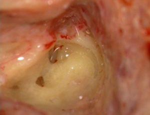 Labyrintectomie I